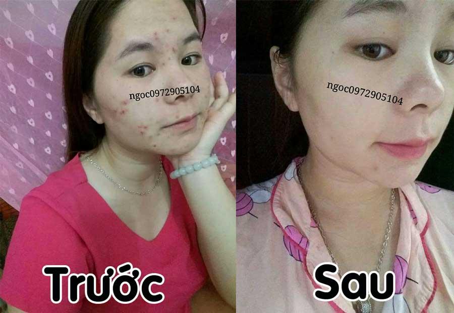 Trước và sau khi sử dụng mỹ phẩm Bảo Ngọc: 0972905104