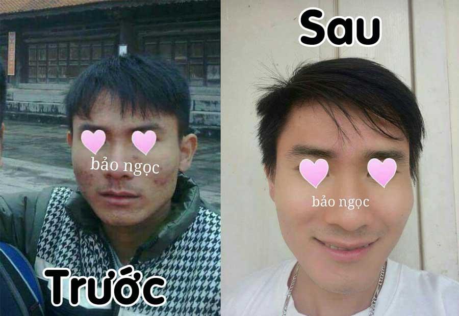 Trước và sau khi sử dụng Đông Y Bảo Ngọc - Yến - Bảo Ngọc Sang Sang